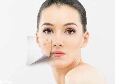 ماسک گیاهی درمان جوش