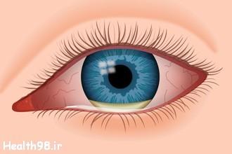 عفونت چشمی هنگام زایمان