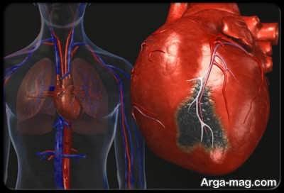 اولین نشانه ها و علایم سکته قلبی