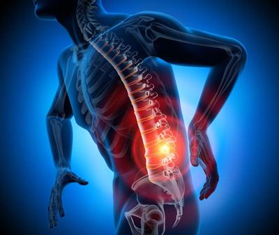 کاهش درد سیاتیک با هفت حرکت